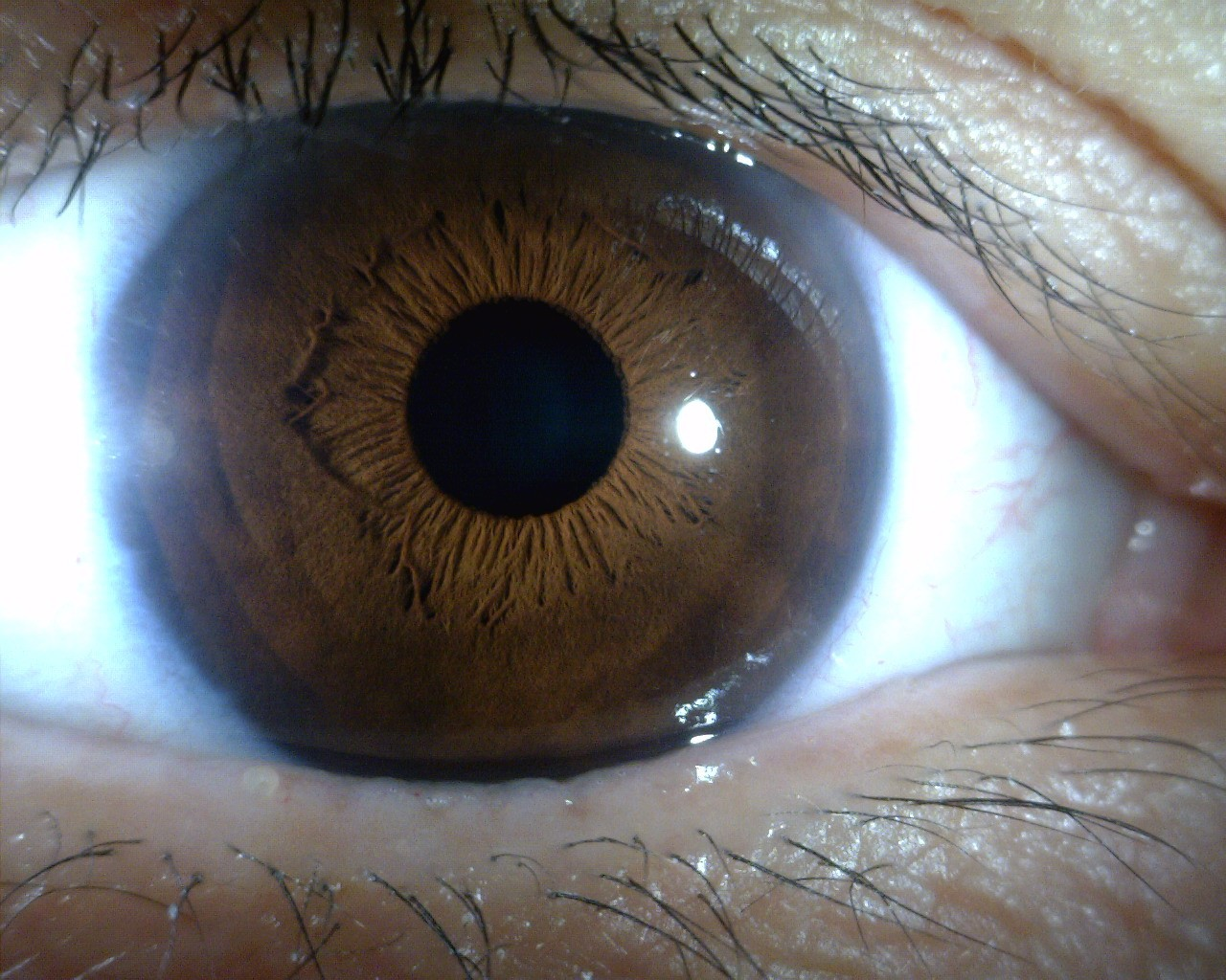 Ophthalmology Iridology